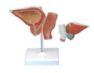 Prostate Model (GI2051-1)